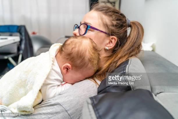 madre en casa sosteniendo a su bebé recién nacido que tiene problema dermatológico cradle cap dermatitis seborreica - dermatitis seborreica fotografías e imágenes de stock