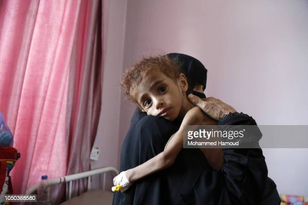 A mother carries her malnourished child as he receives treatment at the Sabeen hospital on October 6 2018 in Sana'a Yemen More than 10000 people have...
