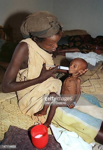 A mother feeds her baby suffering of starvation with a syringe 08 October 1992 in Baidoa southeast of Somalia Some 6000 people died of starvation...