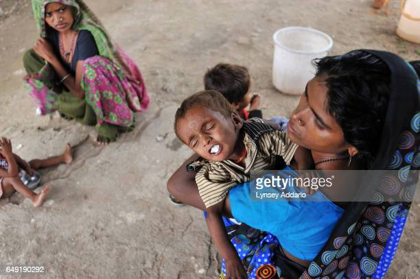 A mother Gheeta feeds a boiled egg to her son Ashish 11 months in the Jeevan Jyoti Mission Hospital in Jhabua Madhya Pradesh India on July 17 2010...