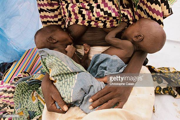 A mother holding her severely malnourished babies waits for a consultation in a MSF care center for starvation victims The 20052006 Niger food crisis...