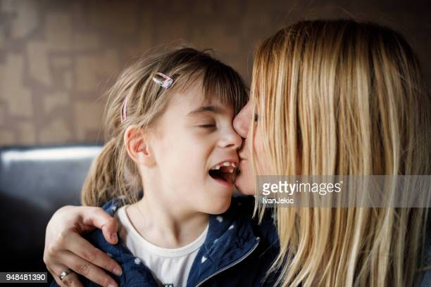 mother kissing daughter with impaired vision - disability stock pictures, royalty-free photos & images