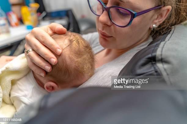 madre mirando su cabeza de bebé recién nacido que tiene problema dermatológico cradle cap dermatitis seborreica - dermatitis seborreica fotografías e imágenes de stock