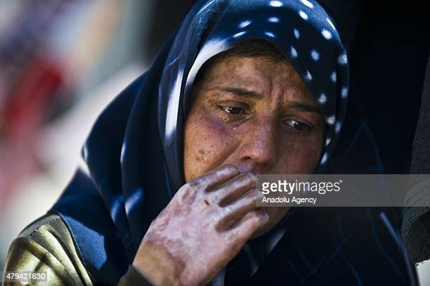 Mother of Syrian child refugee 8yearold Ahmet Kedru with partial thickness burns on the face Aisha Kedru weeps as her son demands support for an...