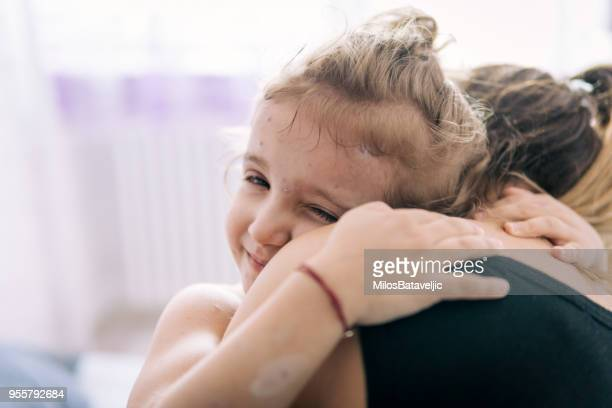 mother taking care of little girl with chicken pox - pathogen stock photos and pictures