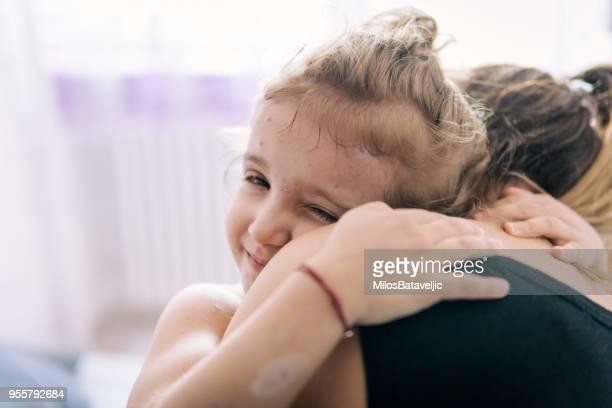 madre cuidando de la niña con varicela - virus de la viruela fotografías e imágenes de stock