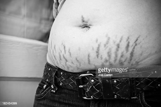 la madre de estiramiento marcas de embarazo - estrias fotografías e imágenes de stock