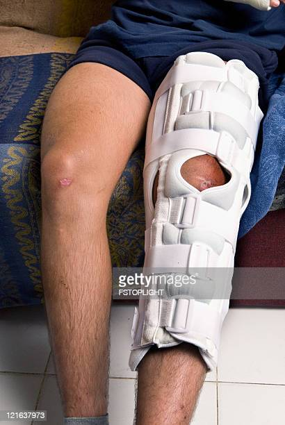 mountain bike accident - cast colors for broken bones stock pictures, royalty-free photos & images