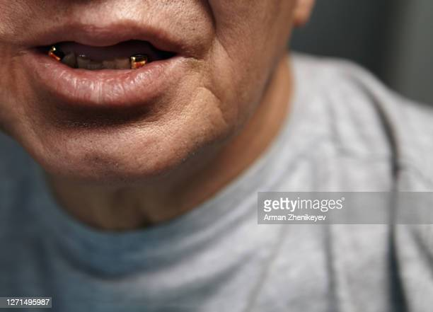 Bad teeth with men Living With