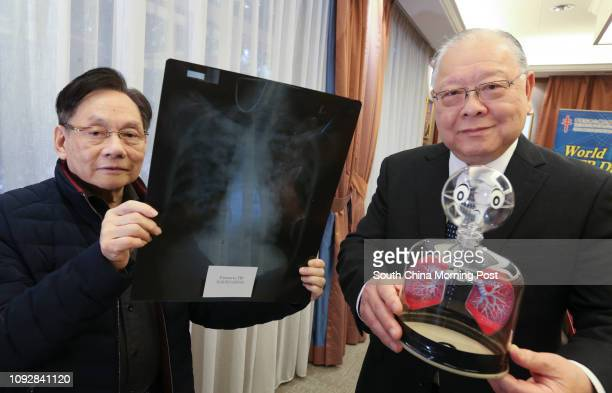 Mr Steve Lan Board Chairman Hong Kong Tuberculosis Chest and Heart Diseases Association holds a model of a pair of lungs and Dr Chan Shiulun Honorary...