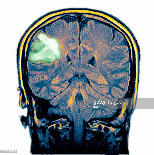 Mri Image Of Cerebral Lymphoma In A 46 Year Old Woman