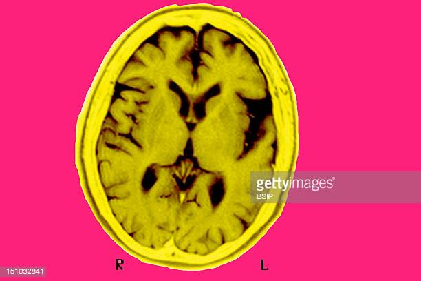 Mri Of The Brain Of A Patient Affected By Alzheimer's Disease Axial Section Voluminous Left Sylvian Fissures Cortical Sulci And Posterior Horns Of...