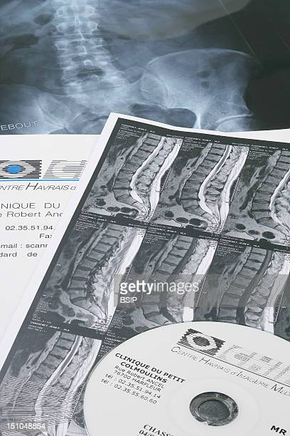 Mri Of The Dorsal And Lumbar Vertebrae Of A 50 Year Old Man Presence Of A Slipped Disc At The Level Of Two Lumbar Vertebrae