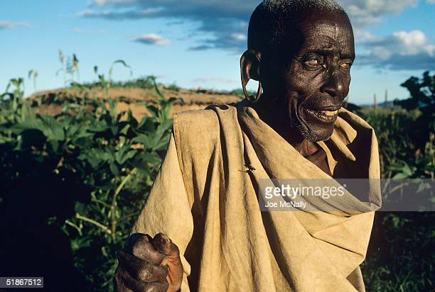 MrMazengo who was blinded by tracoma pauses in 1992 in Laikala Tanzania The microrganism responsible for tracoma is Chlamydia and it is most...
