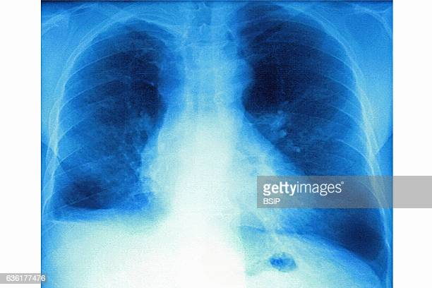 Mucoviscidosis , seen on a frontal x-ray of the chest.