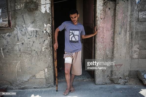 Muhammad Musa Akraa, who was injured from his leg by ...