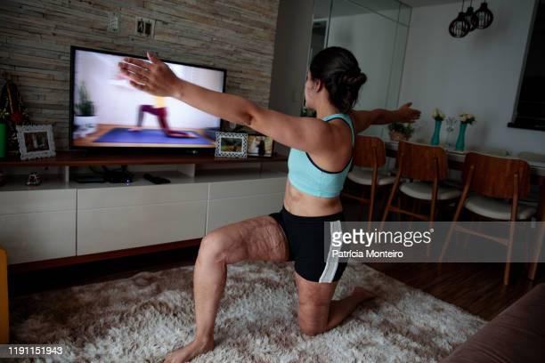 mulher praticando ioga na sala de sua casa, com suas cicatrizes à mostra - showus stock pictures, royalty-free photos & images