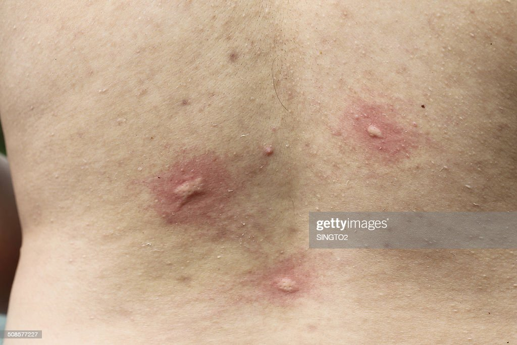 multiple mosquito bites on body : Stock Photo