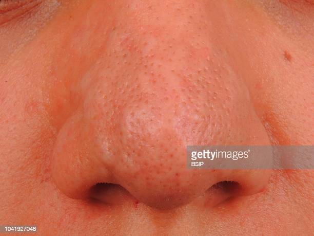 Multiple syringoma of the nose