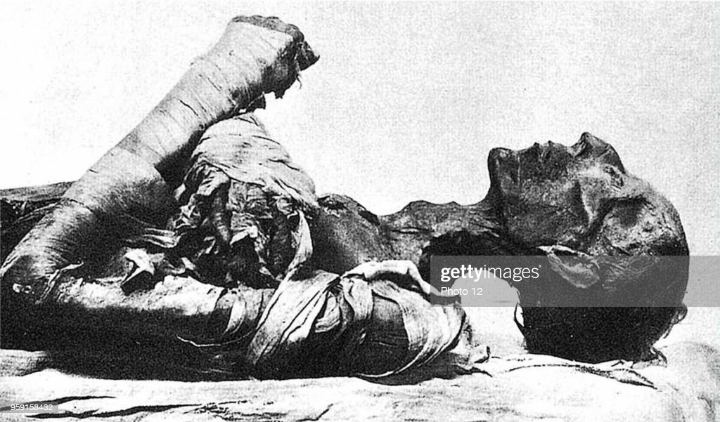Mummy of Pharaoh Ramses II, who died of smallpox. : News Photo