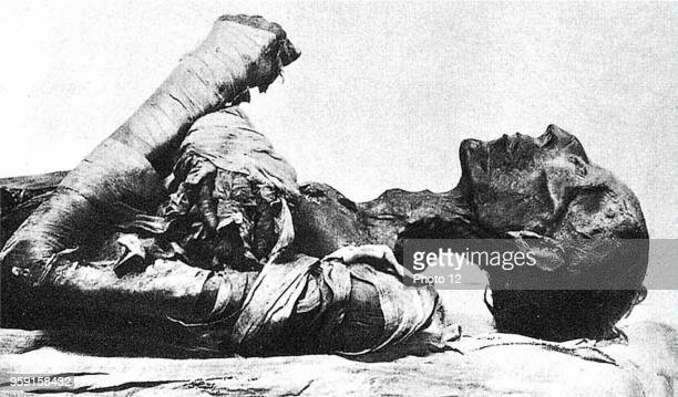 Mummy of Pharaoh Ramses II, who died of smallpox.