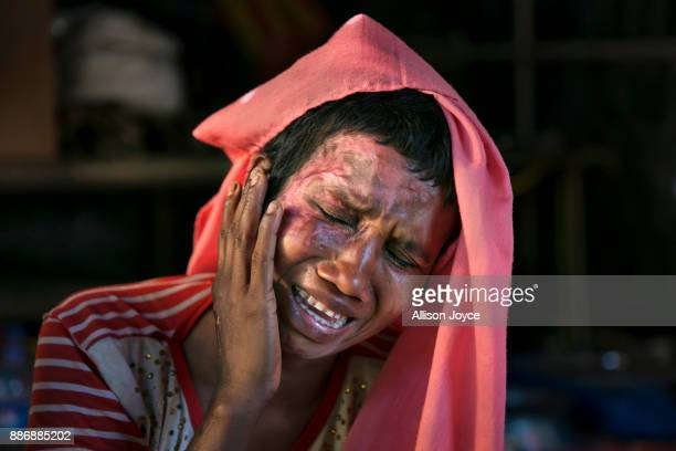COX'S BAZAR BANGLADESH DECEMBER 02 Mumtaz Begum becomes emotional as she touches the wounds she received when the military set her house on fire...