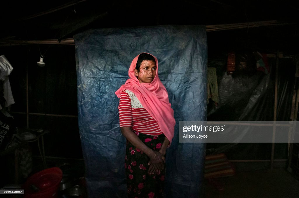 COX'S BAZAR, BANGLADESH - DECEMBER 02: Mumtaz Begum, 30, poses for a photo on December 2, 2017 in Cox's Bazar, Bangladesh. She fled to Bangladesh shortly after the August 25th attack from Tula Toli village in Myanmar. She fled to Bangladesh shortly after the August 25th attack. She says that one night the military attacked her village and burned homes. Everyone ran and hid but the military found them. They shot her husband in front of her, and as he lay dying she told him 'I have lived many years with you, if I made any mistakes, please forgive me.' As he lay injured he asked the military for some water, and they responded by shooting him again, and he died. Then the military took her and 5 other women to a house, with some of their children. They started raping her and the other women and when the children screamed, they hit them in the head with machetes. They hit one of her sons, splitting his skull open, and he died. They also hit her daughter, but she survived and escaped the house. When the military was done raping her and the other women, they lit the house on fire. Mumtaz crawled through the flames as her clothes caught fire and the roof caved in, and was the only woman who managed to escape. The other 5 women burned to death. She hid in the forest until a group of people found her and carried her to the border and into Bangladesh. Mumtaz says 'I want justice and I want to tell the world all the things the military did. They raped and killed us. We want justice.' Human Rights groups have reported of widespread rape and sexual assault on Rohingya women and girls by Burmese security forces during the violence in Myanmar's Rakhine State.