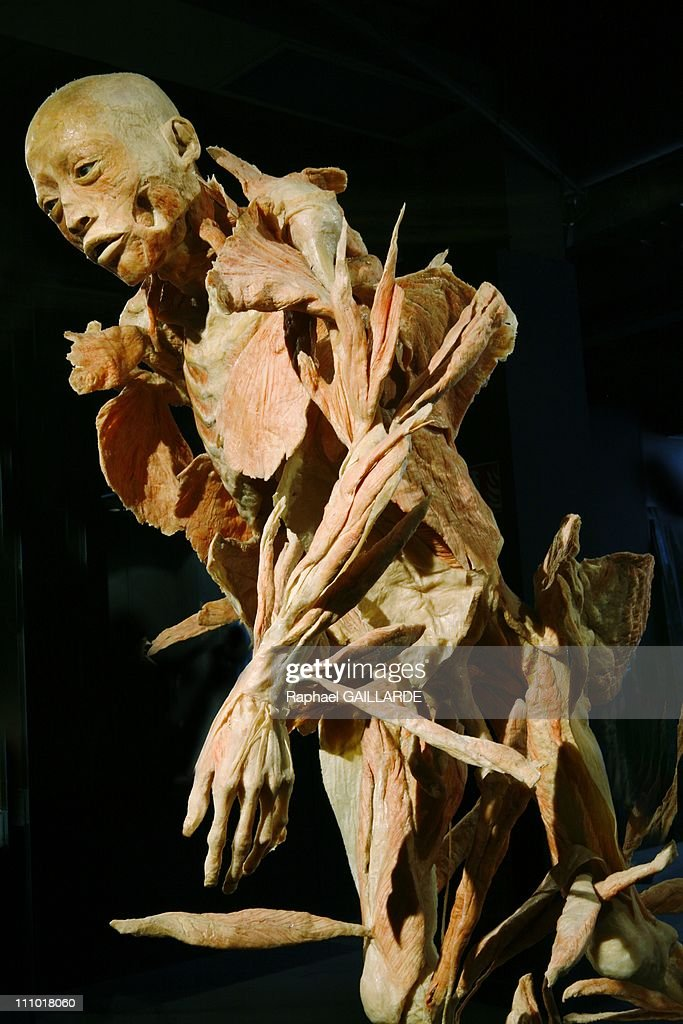 Muscle Detaches From The Bone In The Arms And Legs In Paris France