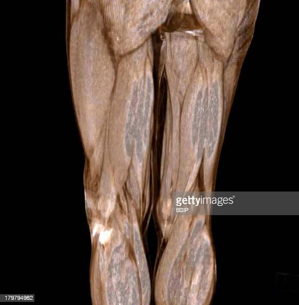 Muscle Scan Posterior Muscles Of The Thighs And Buttocks 3d Ct