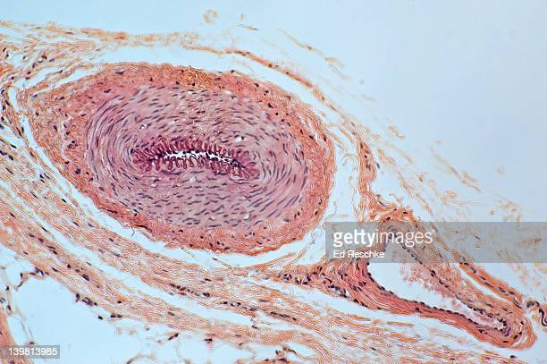 Muscular Artery and Vein in cross section showing Layers or Tunics,  (Magnification x 50).  The muscular artery shows the tunica intima and internal elastic membrane,  the tunica media (smooth muscle),  and the tunica adventitia.  The vein has a thinner w