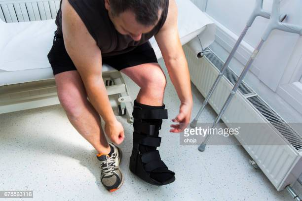 muscular athlete with walking boot for achilles tendon treatment - nylon fastening tape stock photos and pictures