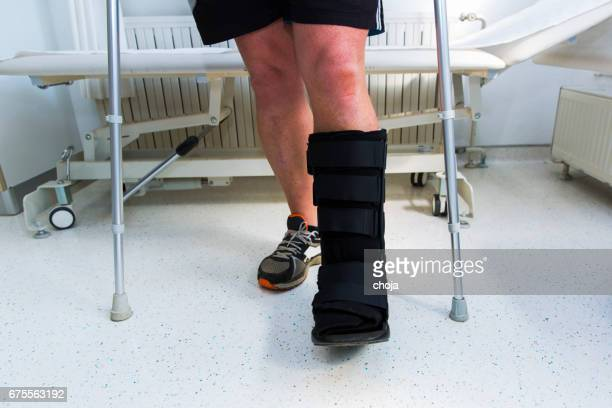 muscular athlete with walking boot for achilles tendon treatment - achilles tendon stock pictures, royalty-free photos & images