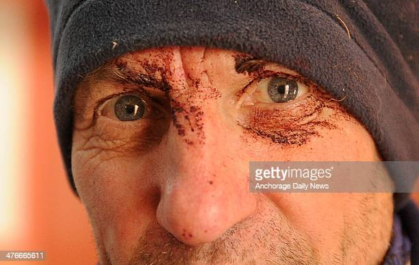 Musher Hans Gatt has dried blood around his eyes after coming off the Farewell Burn and into the Nikolai checkpoint during the 2014 Iditarod Trail...