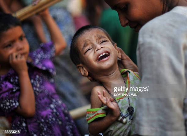 Muslim Rohingya mother comforts her crying child as they wait for medical care at a clinic in the Bawdupha Internally Displaced Persons camp on the...
