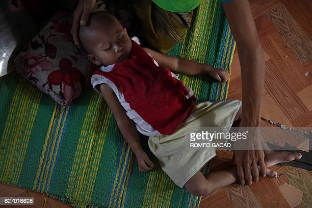 A Myanmar oneyear and six months old baby boy positive with HIV is held by her widowed mother living with HIV while they are both housed at the...