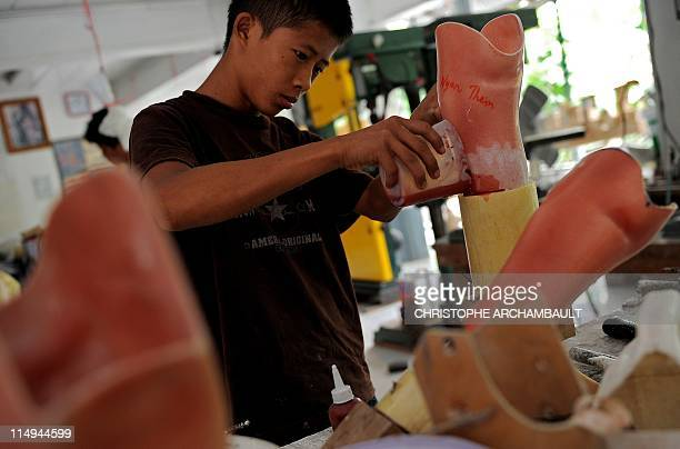 STORY 'MyanmarThailandconflictlandminerightsFEATURE' by Daniel ROOK This picture taken on May 10 2011 shows an employee of the Mae Tao clinic working...