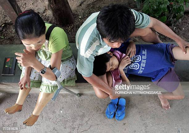 MyanmarThailandunrestmines by Charlie McDonaldGibson This photo taken 28 September 2007 shows a landmine victim sitting next to her family as she...