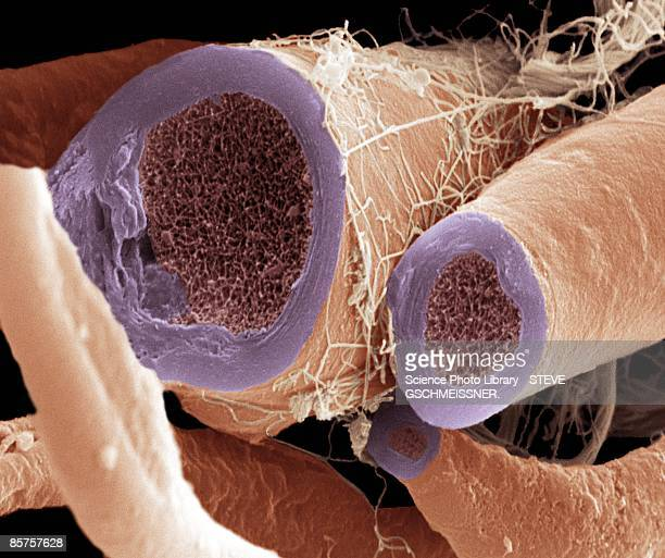 myelinated nerve fiber - sem stock pictures, royalty-free photos & images