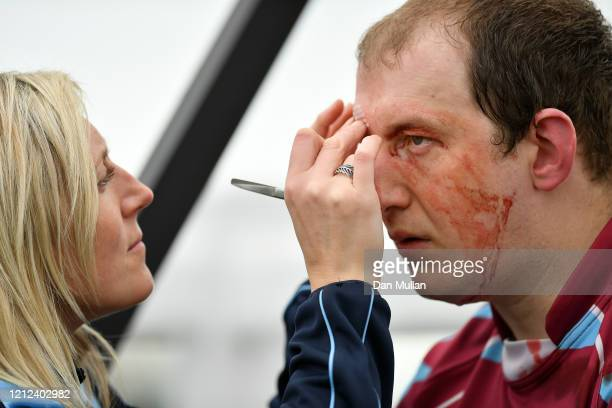 Mylo Connell of OPMs receives medical attention to a cut on his head during the Lockie Cup Semi Final match between Old Plymouthian and Mannameadians...