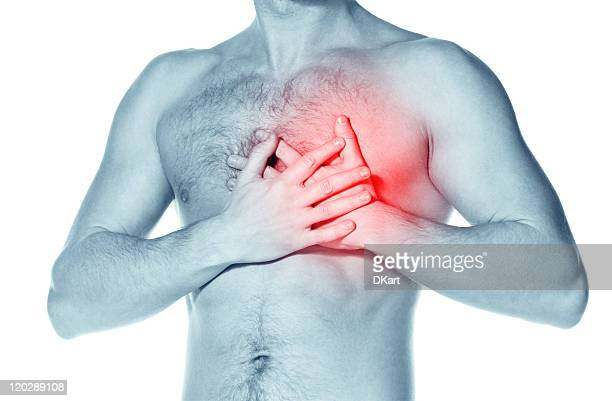 naked man  having a heart attack - blood clot stock pictures, royalty-free photos & images