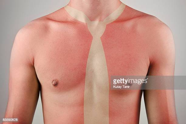 Naked man with bad sunburn and necktie outline.