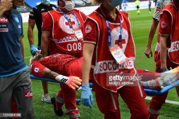 Napoli's Colombian goalkeeper David Ospina is stretched out of the pitch following a head injury during the Italian Serie A football match Atalanta...