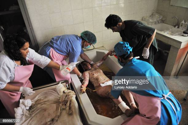 Nargis an Afghan woman from Kabul who burned herself because her husband beat her repeatedly has her bandages changed in the burn unit of the...