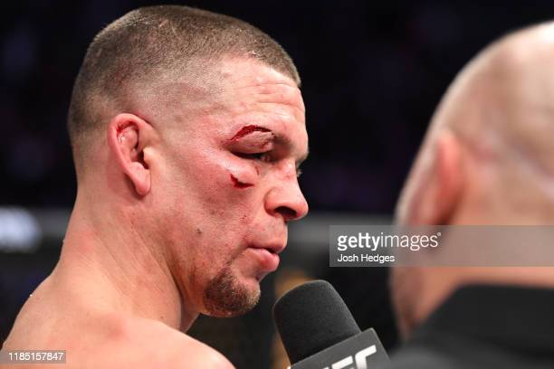 Nate Diaz is interviewed after his loss to Jorge Masvidal in their welterweight bout for the BMF title during the UFC 244 event at Madison Square...