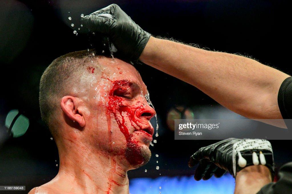 UFC 244 Masvidal v Diaz : News Photo