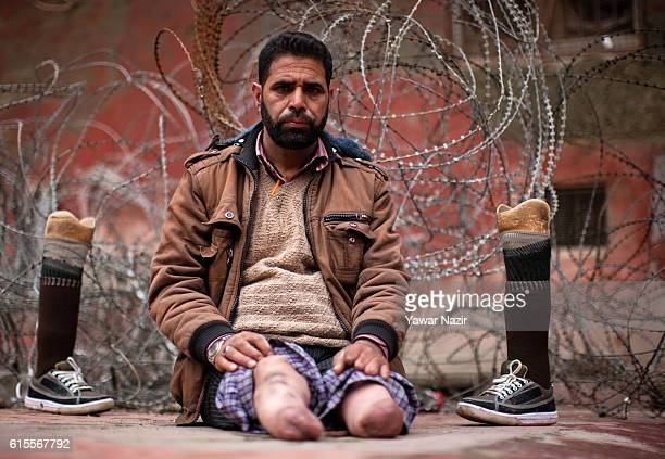Nazir Ahmad Sheikh a torture victim poses with his amputated and prosthetic legs in front the concertina razor wire of Indian government forces on...