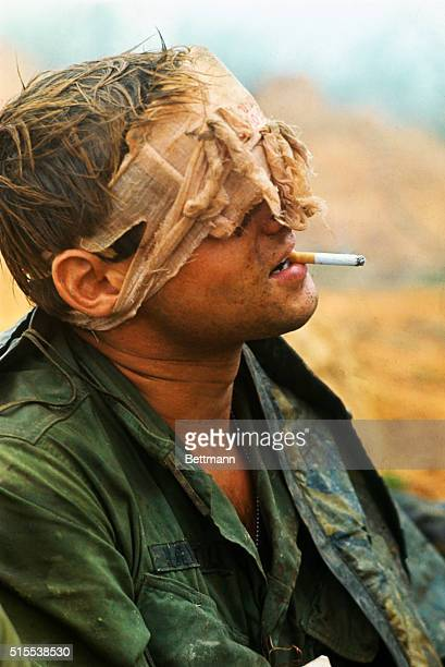Near Khe South Vietnam 1st Cavalry men many with head wounds wait to be evacuated from hilltop along route during advance toward Khe Sanh