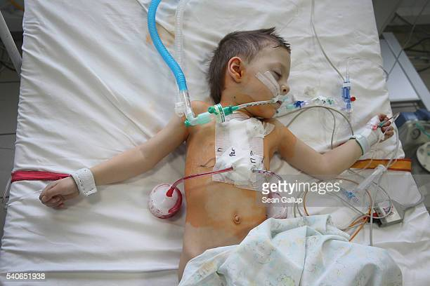 Nearlyfouryearold Rostislav Sokolov recovers from openheart surgery in the cardiac surgery wing of the VT Zaycev Institute of General and Urgent...