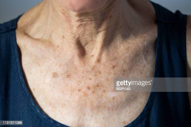 neck of old woman - liver spot stock photos and pictures