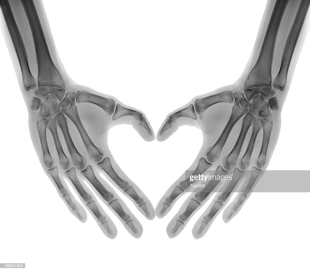 Negative X-ray - Human palms folded in a heart shape : Stock Photo